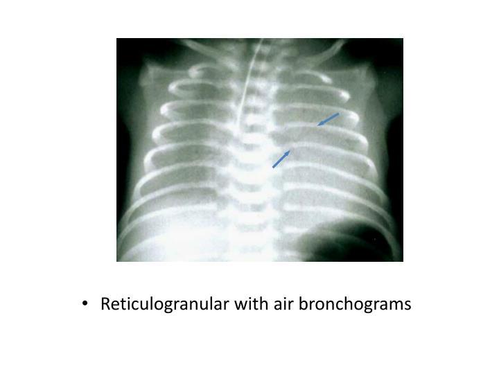 Reticulogranular with air bronchograms