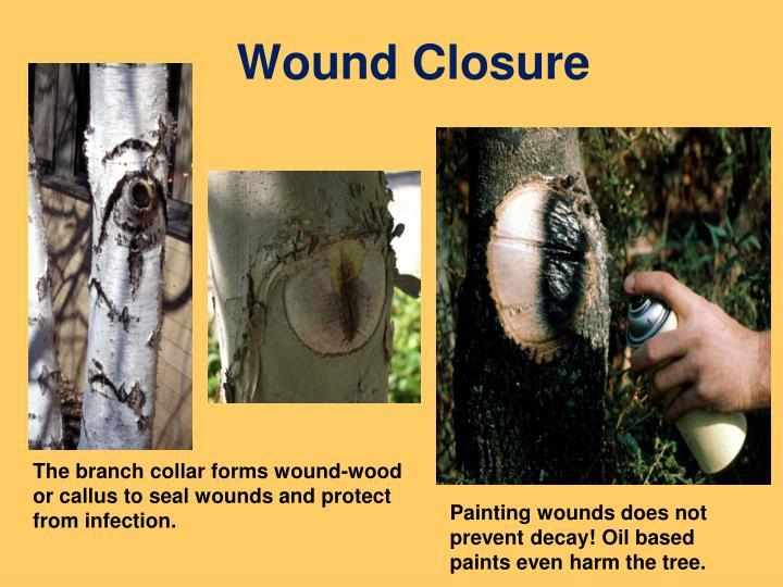 Wound Closure