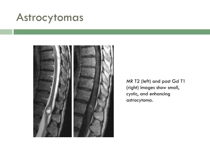 Astrocytomas