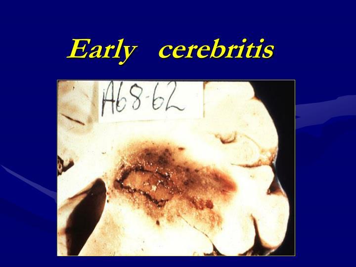 Early   cerebritis