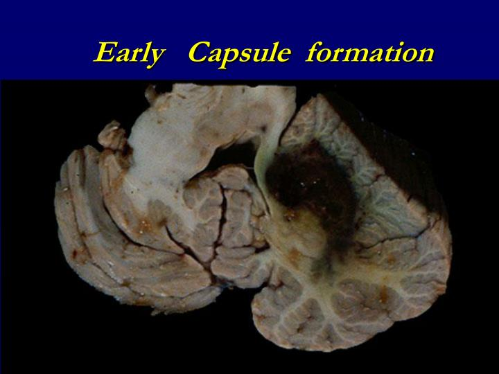 Early   Capsule  formation