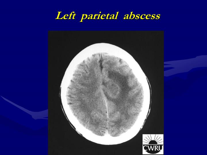 Left  parietal  abscess