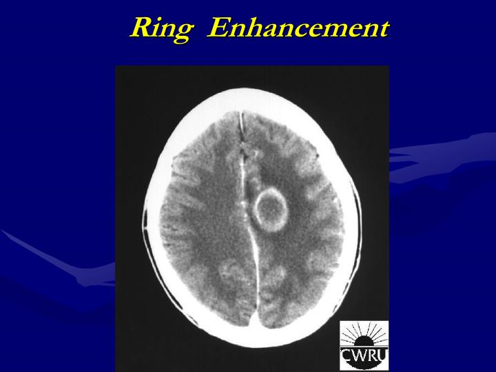 Ring  Enhancement