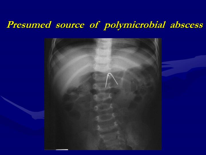 Presumed  source  of  polymicrobial  abscess