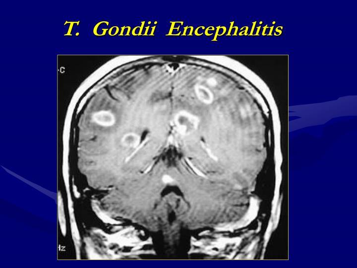 T.  Gondii  Encephalitis