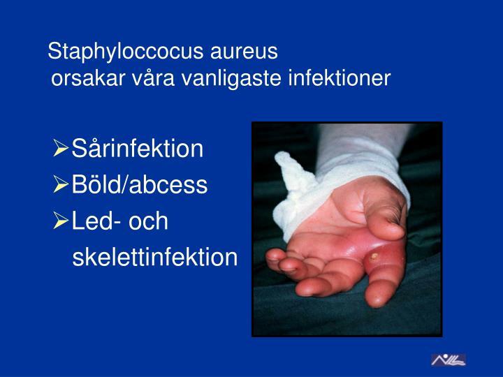 Sårinfektion