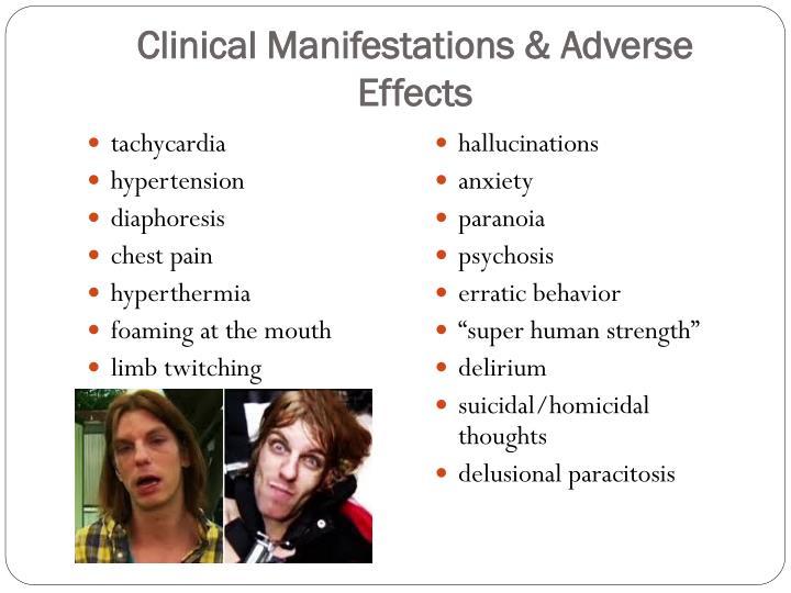 Clinical Manifestations &