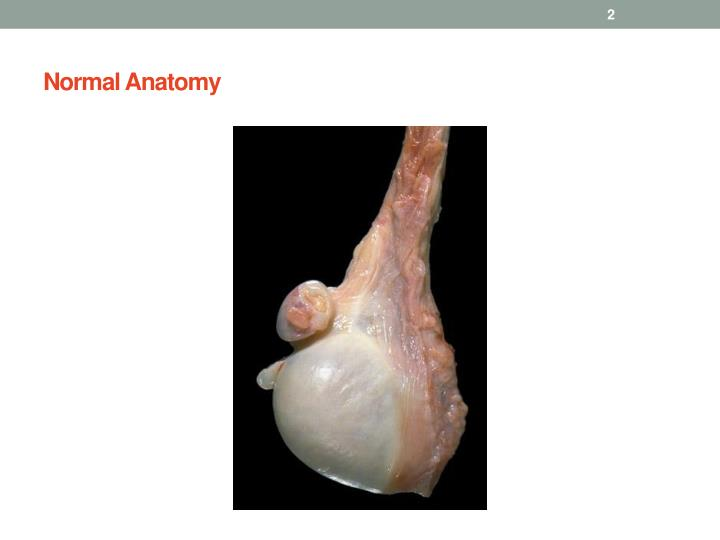 Normal anatomy