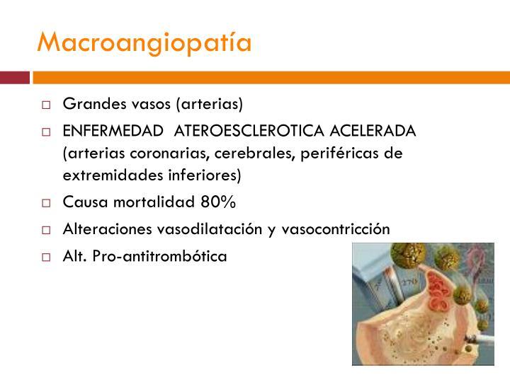 Macroangiopatía