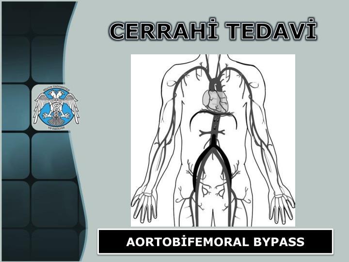 Aortobifemoral bypass anatomy