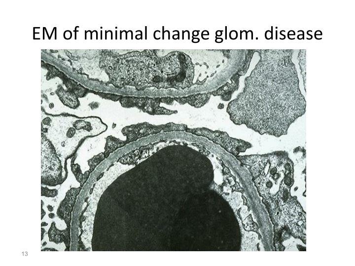 EM of minimal change glom. disease