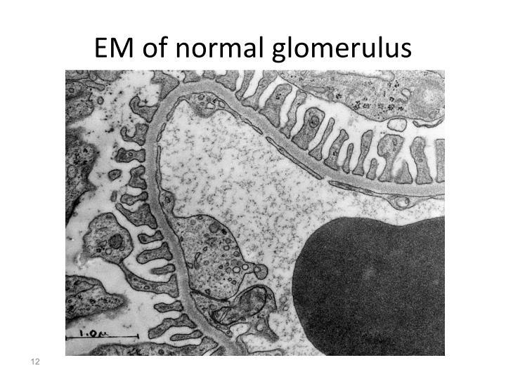 EM of normal glomerulus