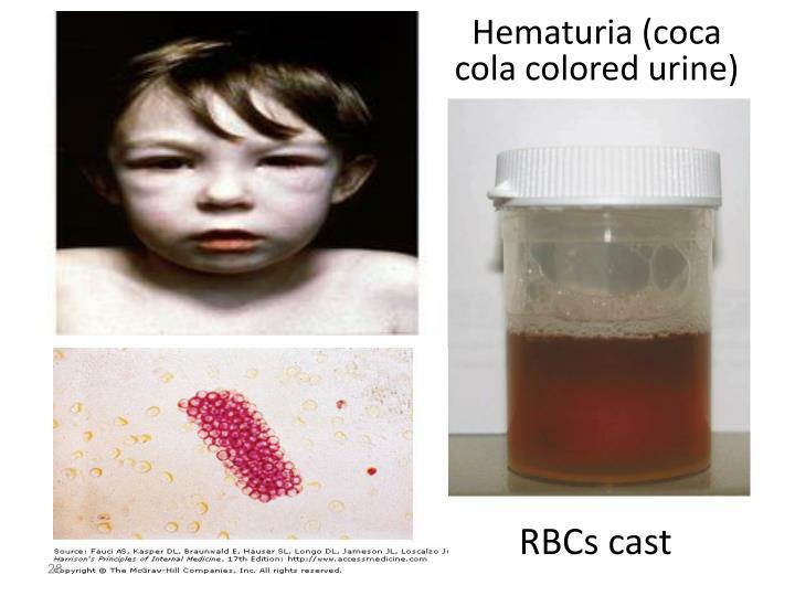 Hematuria (coca cola colored urine)