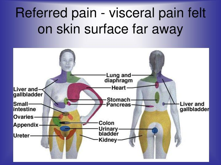 Referred pain - visceral pain felt on skin surface far away