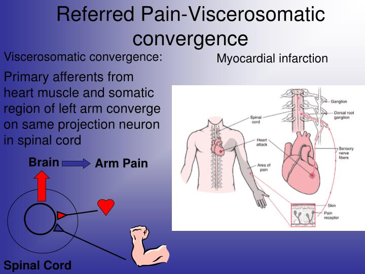 Referred Pain-Viscerosomatic convergence