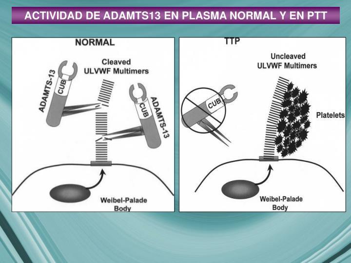 ACTIVIDAD DE ADAMTS13 EN PLASMA NORMAL Y EN PTT