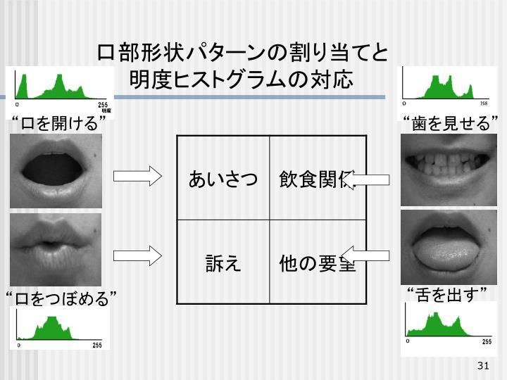 口部形状パターンの割り当てと