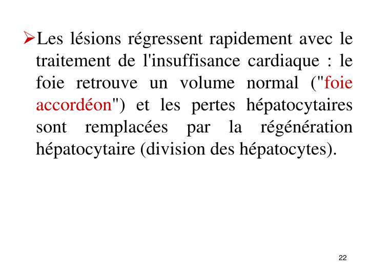 """Les lsions rgressent rapidement avec le traitement de l'insuffisance cardiaque : le foie retrouve un volume normal ("""""""