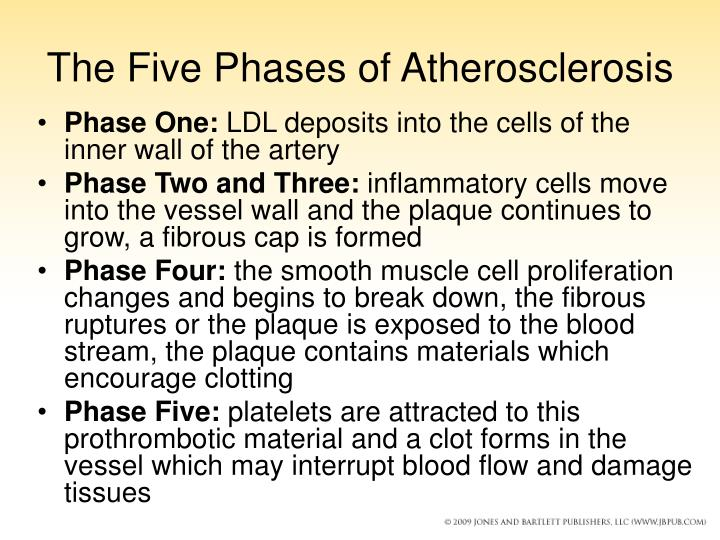 The Five Phases of Atherosclerosis