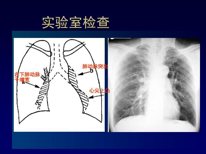 肺动脉突出