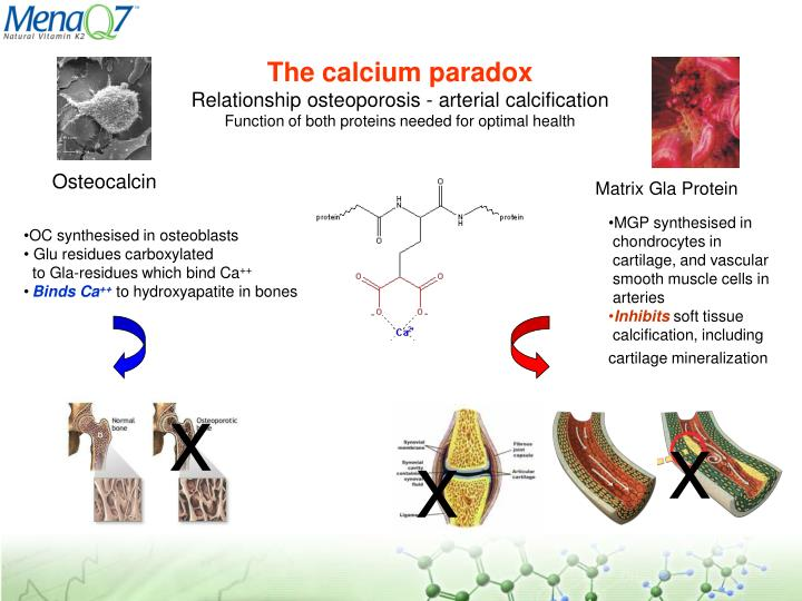 The calcium paradox