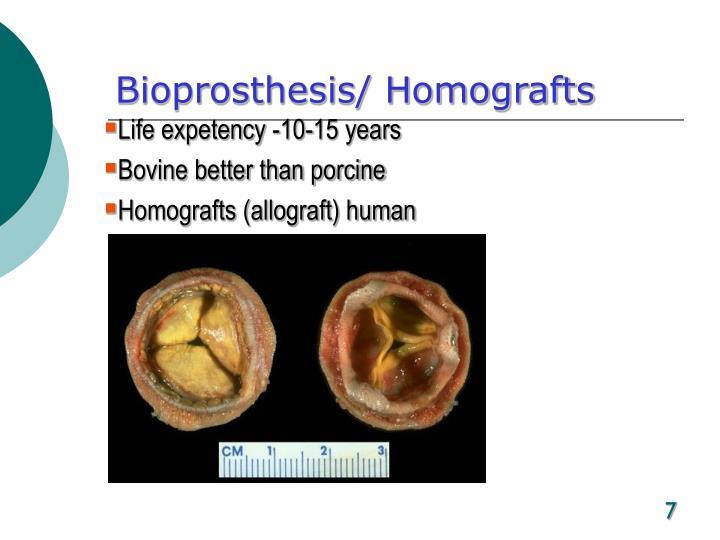 Bioprosthesis/ Homografts