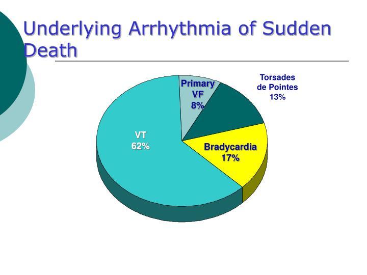 Underlying Arrhythmia of Sudden Death