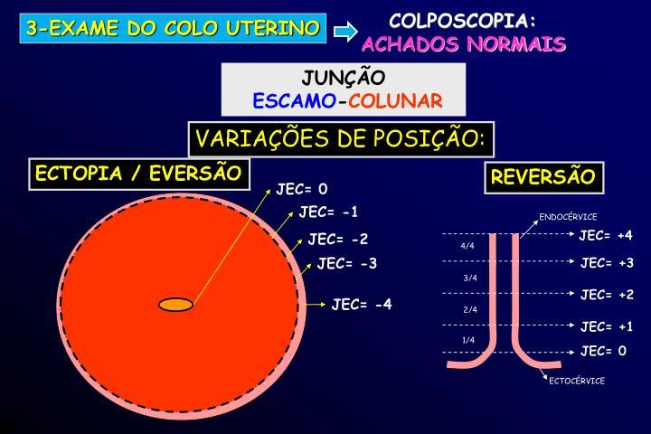 JEC= 0