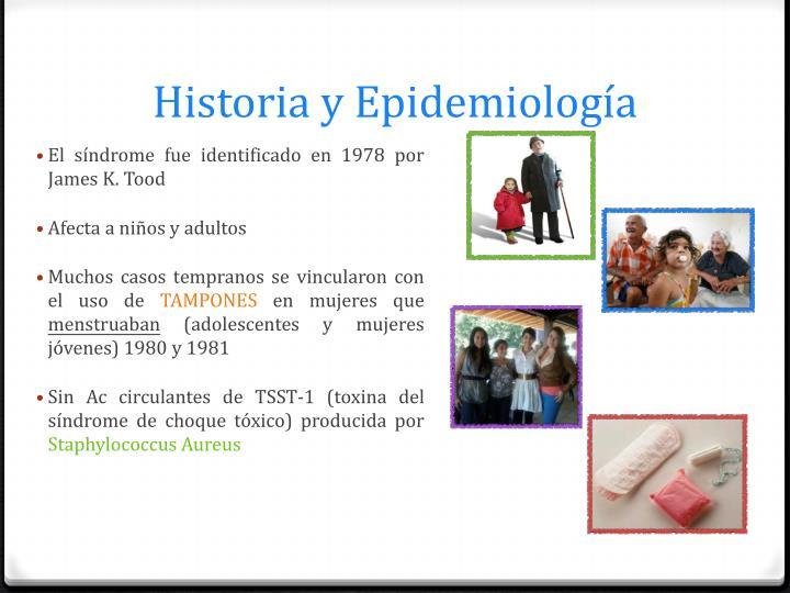 Historia y Epidemiología