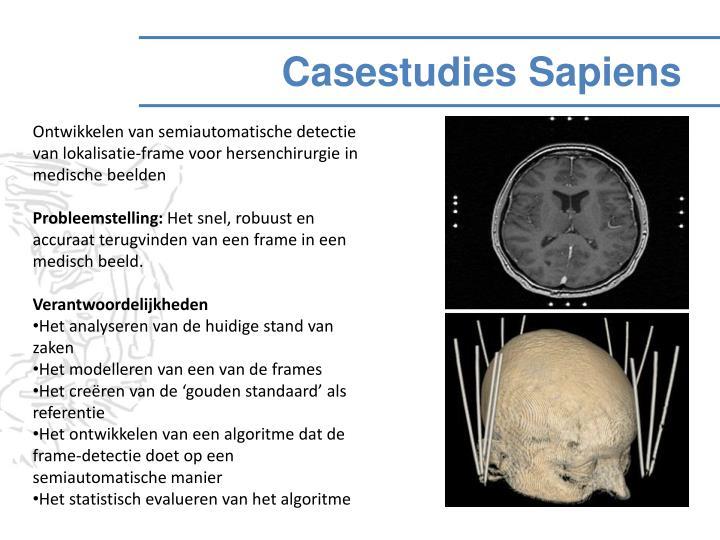 Ontwikkelen van semiautomatische detectie van lokalisatie-frame voor hersenchirurgie in medische