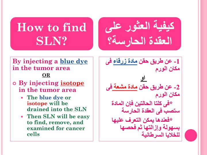 How to find SLN
