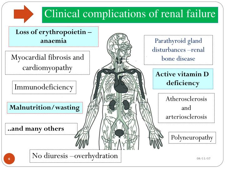 Clinical complications of renal failure