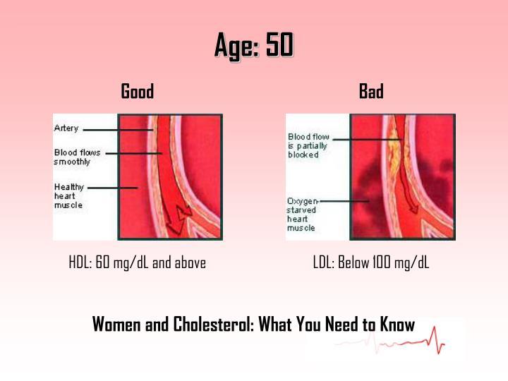 Age: 50