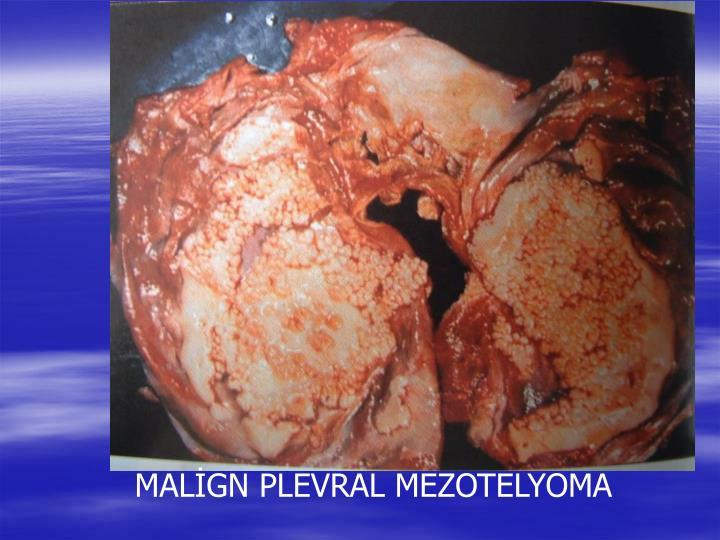 MALİGN PLEVRAL MEZOTELYOMA