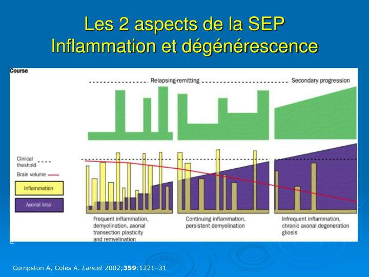 Les 2 aspects de la SEP