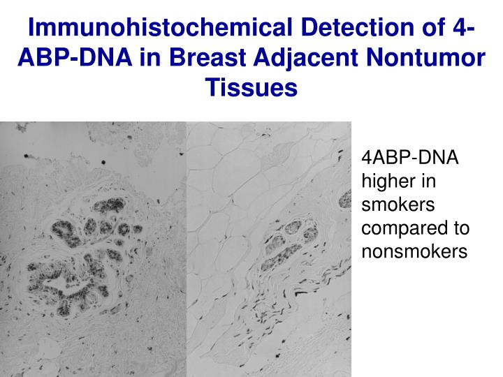 Immunohistochemical Detection of 4-ABP-DNA in Breast Adjacent Nontumor Tissues