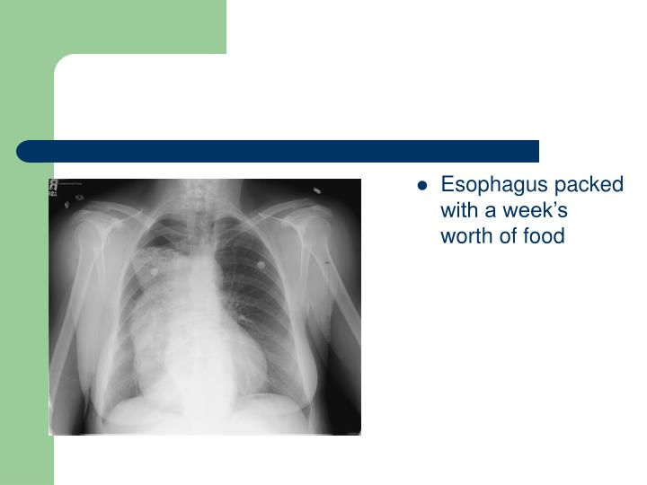 Esophagus packed with a week's worth of food