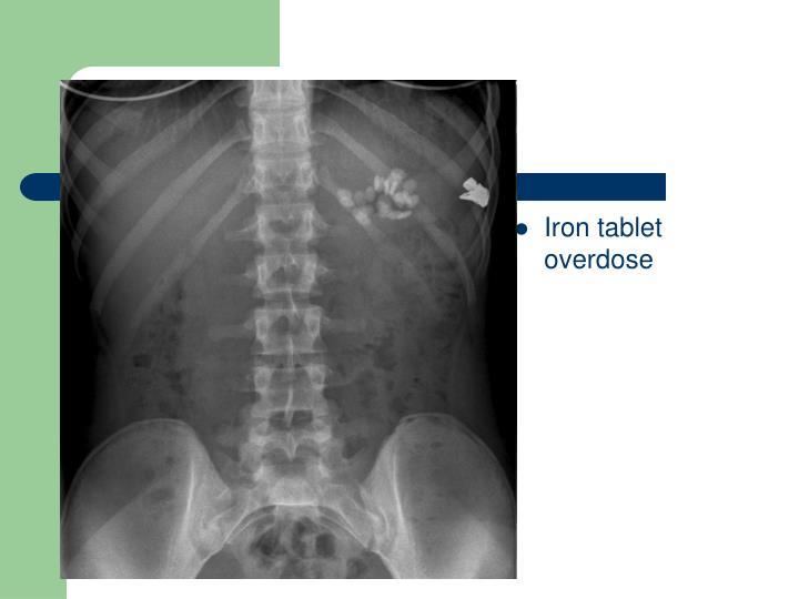 Iron tablet overdose
