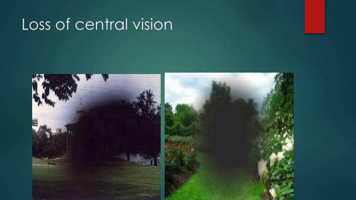 Loss of central vision