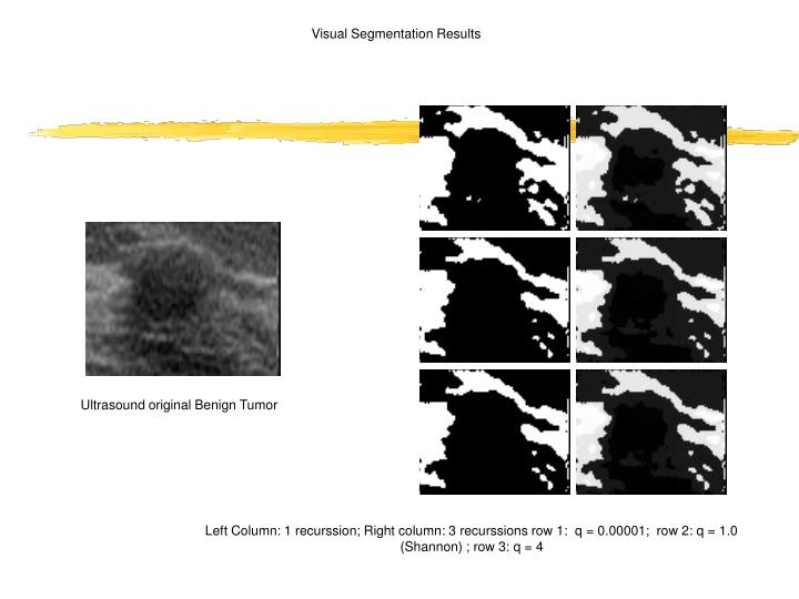 Visual Segmentation Results