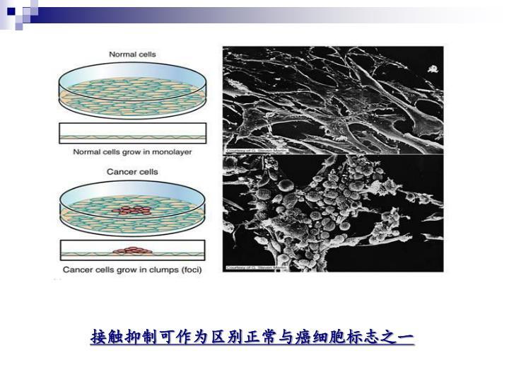 接触抑制可作为区别正常与癌细胞标志之一
