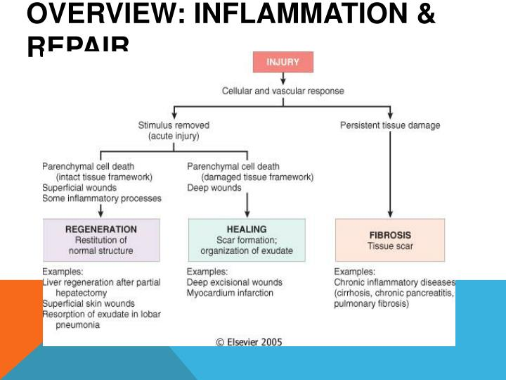 Overview: inflammation & repair