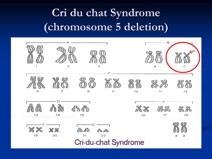 Cri du chat syndrome chromosome abnormality in
