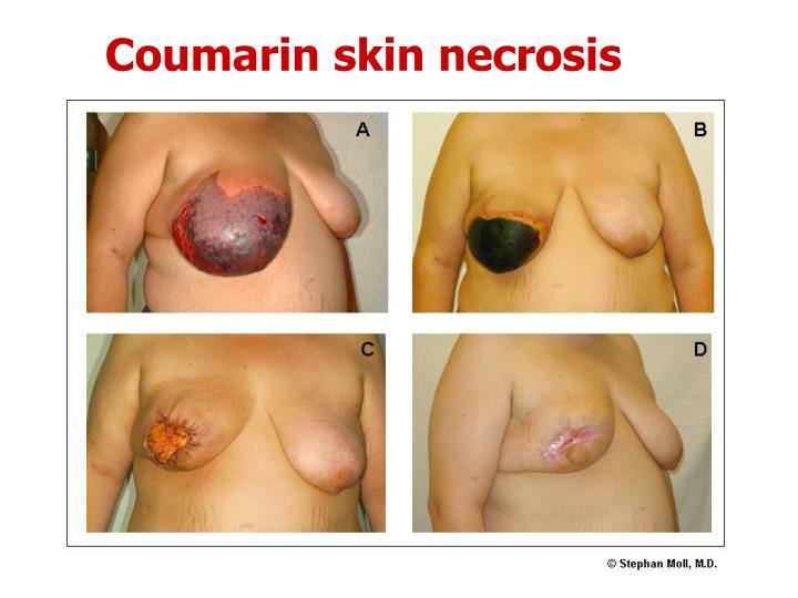 Coumarin skin necrosis