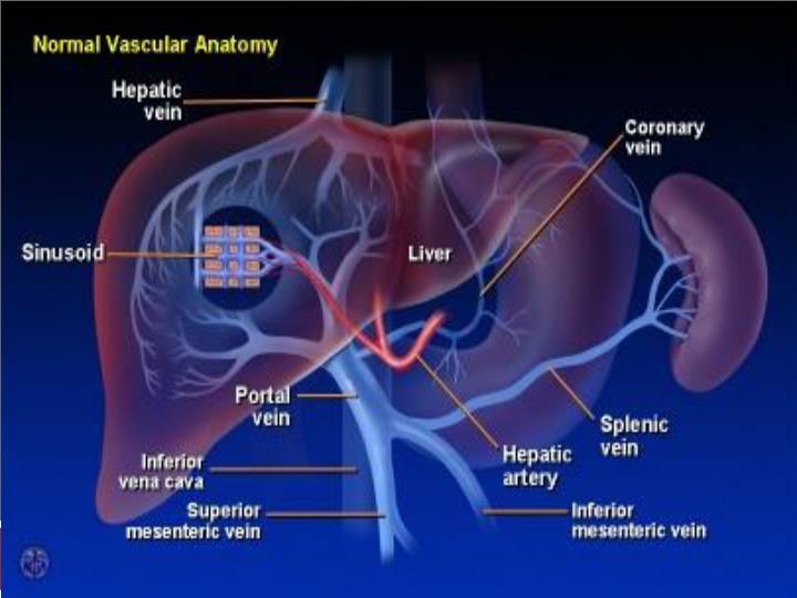 Cirrhosis & Portal Hypertension