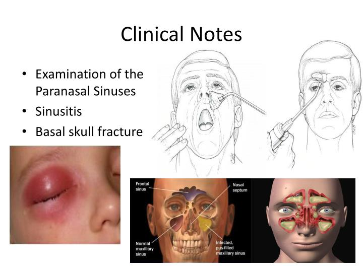 Clinical Notes