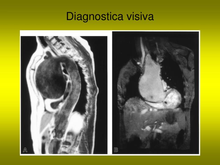 Diagnostica visiva