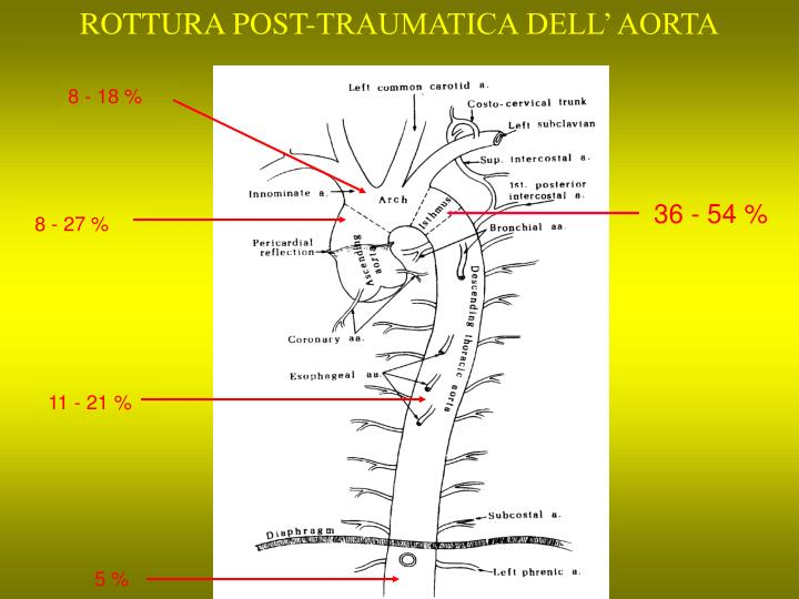 ROTTURA POST-TRAUMATICA DELL' AORTA