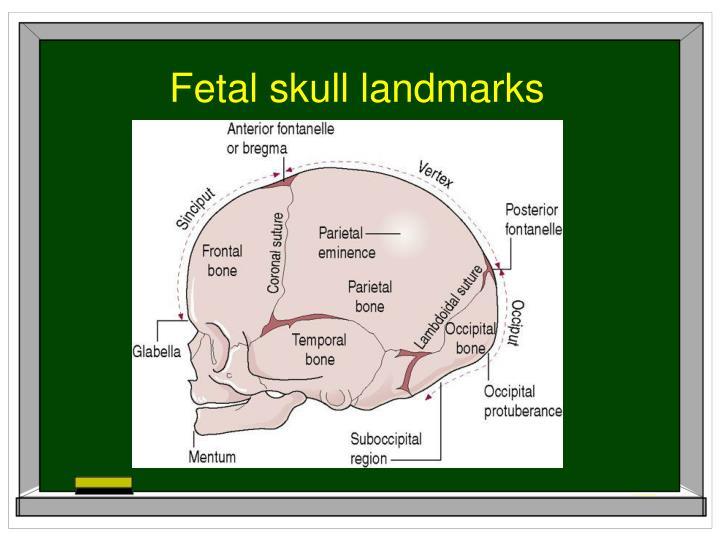 Fetal skull landmarks