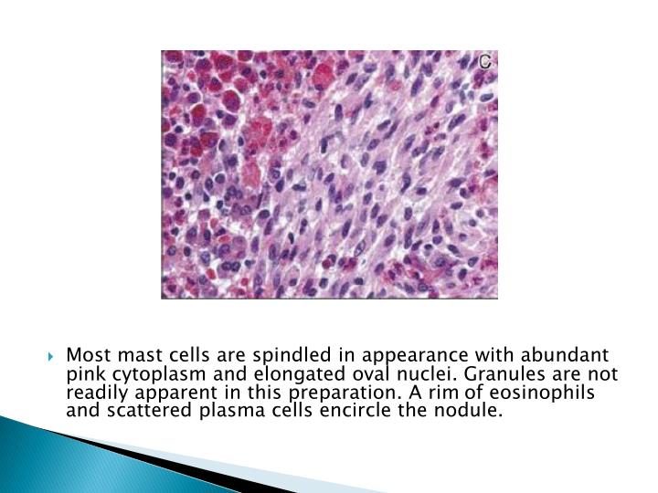 Most mast cells are spindled in appearance with abundant pink